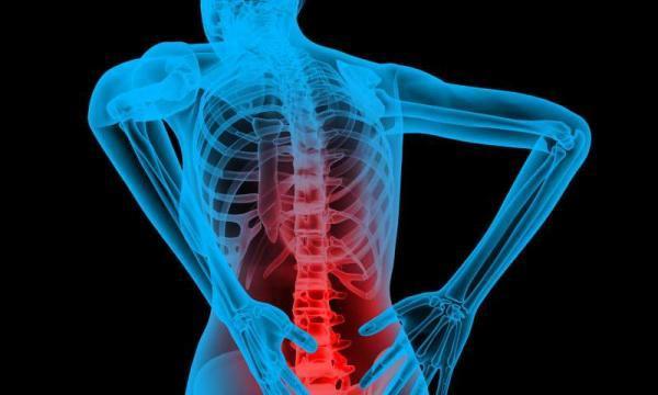 تنگی کانال نخاع؛ علایم و روش های درمانی